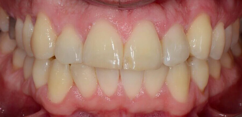 Morso Incrociato Ortodonzia Invisibile Senza Attacchi