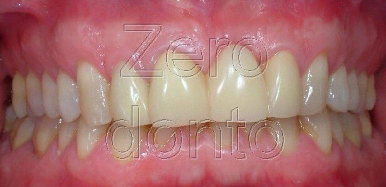 Ortodonzia Invisibile Affollamento Denti