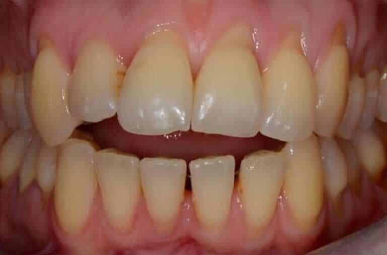 Ortodonzia Invisibile Prima