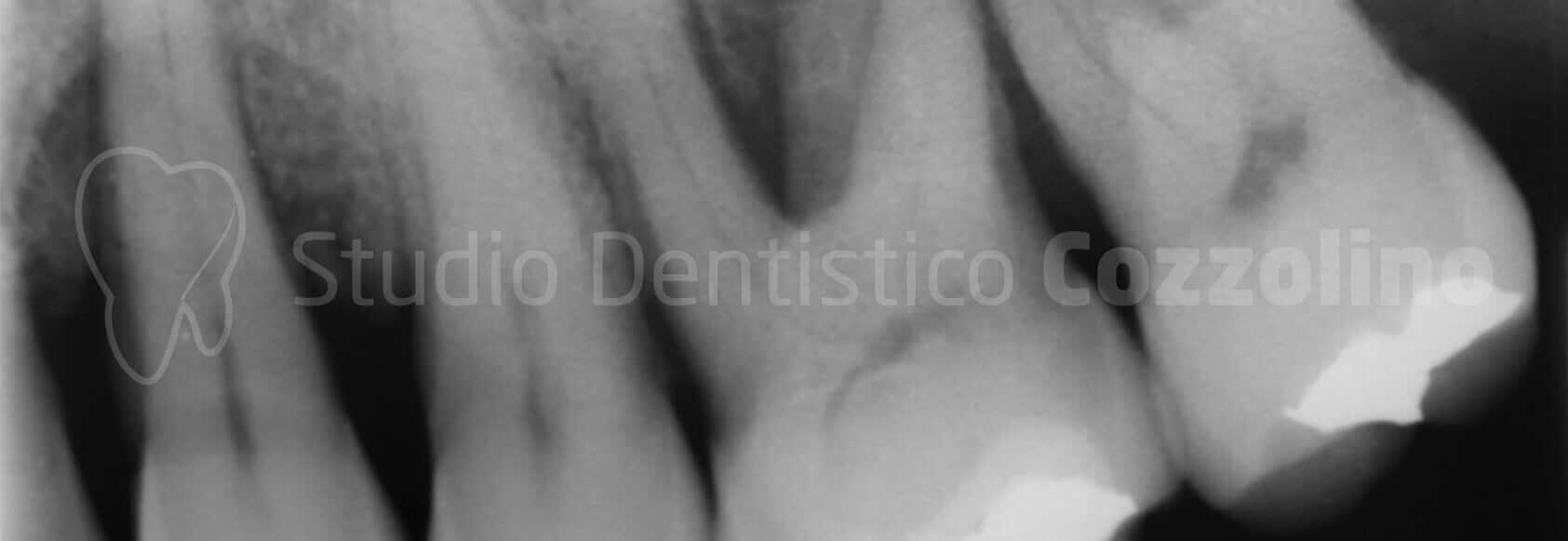 Ortopantomografia Arcate Parodontologia