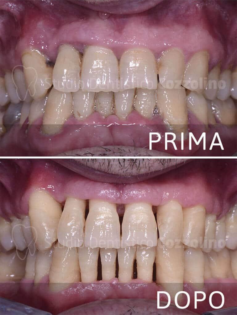 Parodontite Prima Dopo