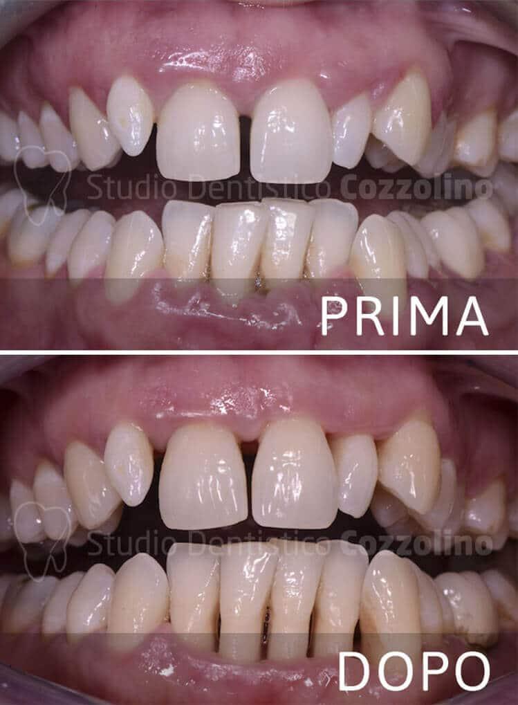 Parodontologia Prima Dopo