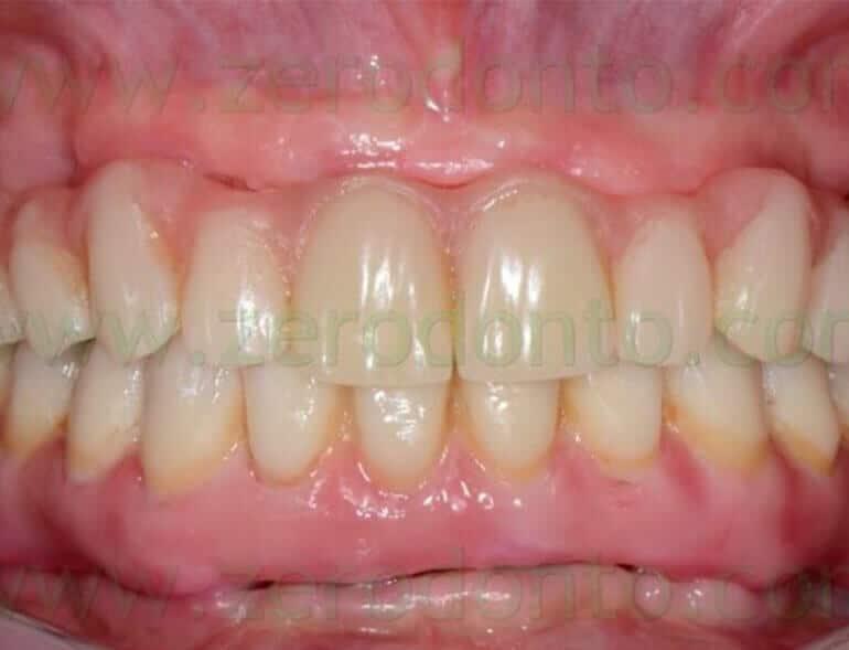 Protesi Totale Fissa Denti