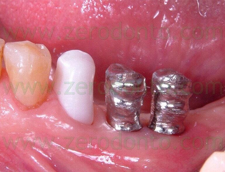 Protesizzazione Impianti Molari