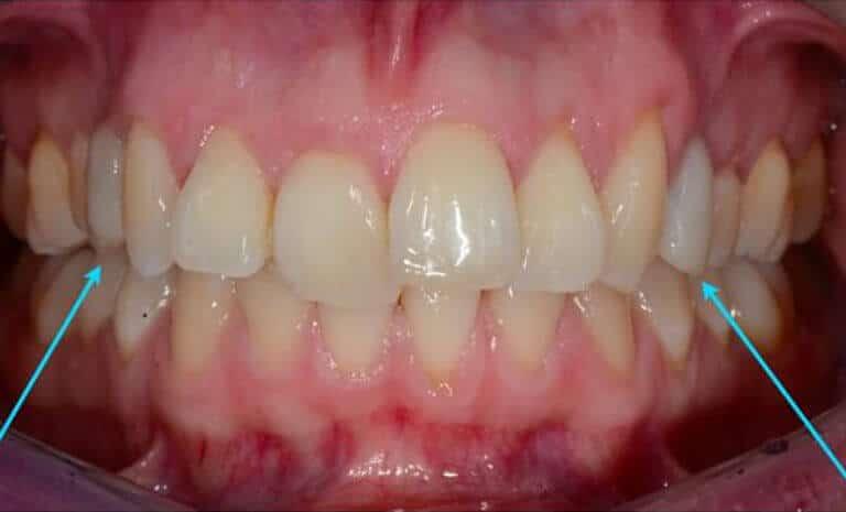 Provvisori Estrazione Dentale