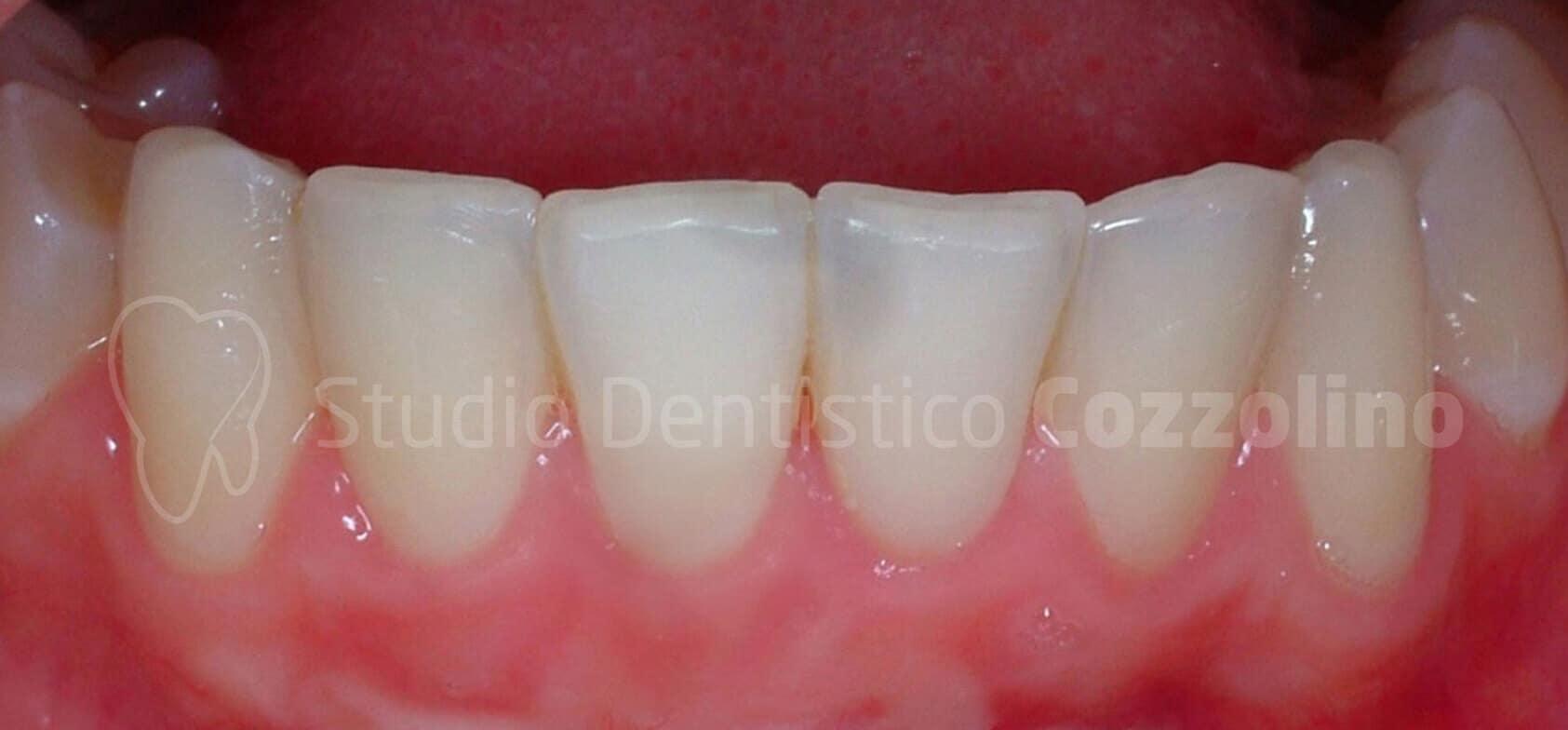 Recessione Gengiva Chirurgia Dopo Parodontite