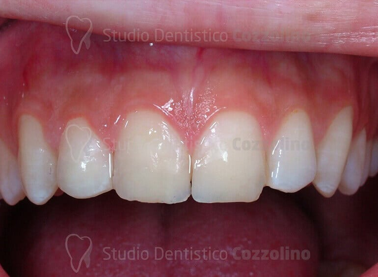 Risoluzione Evento Traumatico Odontoiatria Conservativa