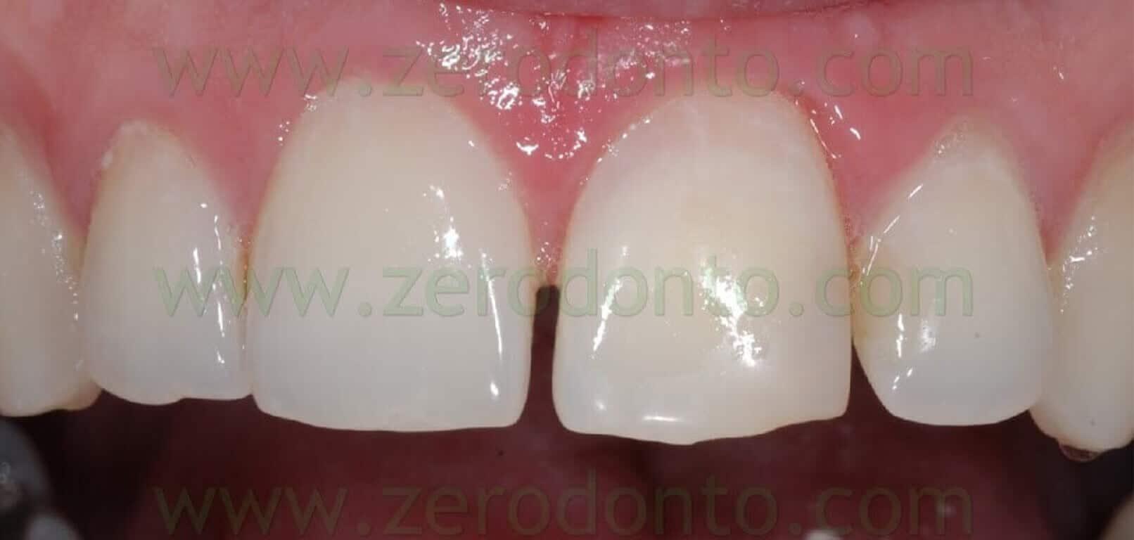 Sbiancamento Dente Non Vitale Dopo