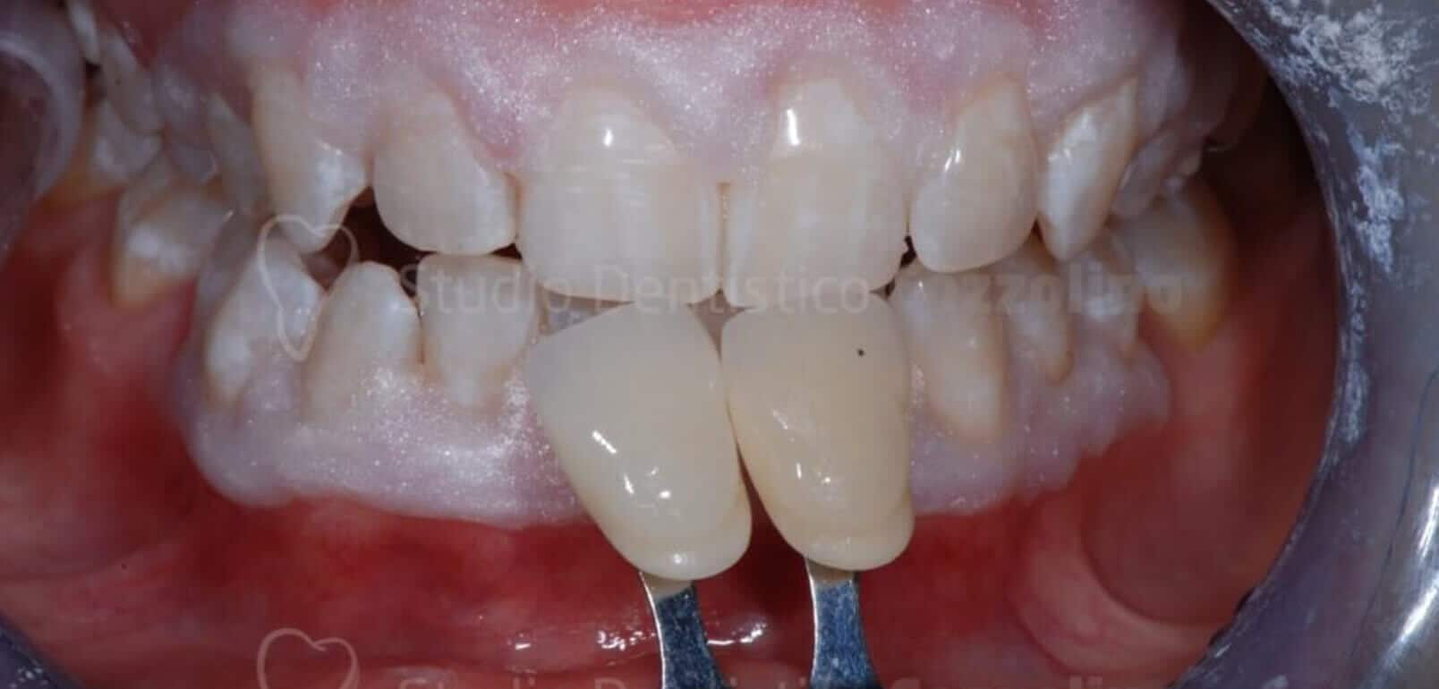 Sbiancamento Denti Trattamento Poltrona