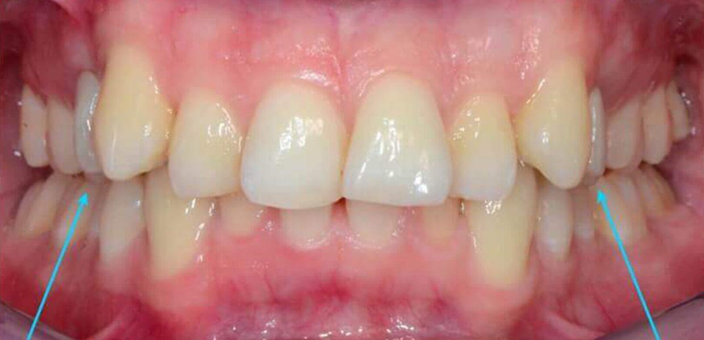 Seconda Calsse Ortodonzia Invisibile Linguale