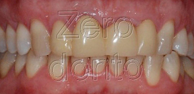 Sorriso Perfetto Ortodonzia Invisibile