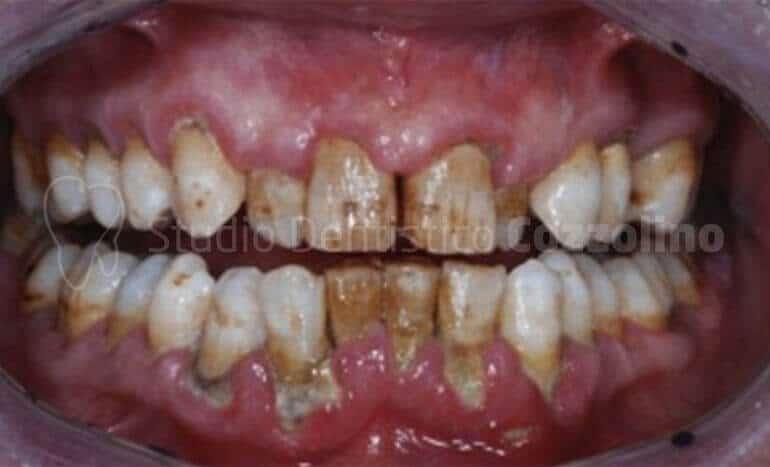 Tartaro Fase Terminale Parodontite Pulizia