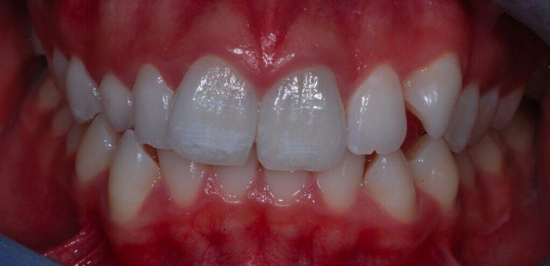 Terapia Estrattiva Ortodonzia Invisibile