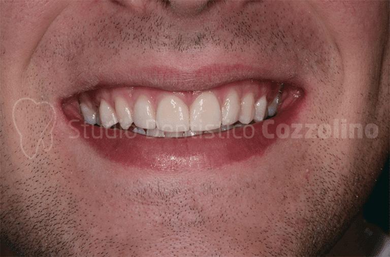 Trattamento Minimamente Invasivo Diastemi Ipoplasia Smalto Faccette Ceramica Feldspatica