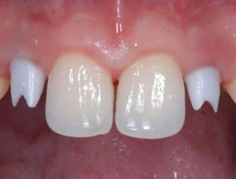 Trattamento Ortodontico Implantare