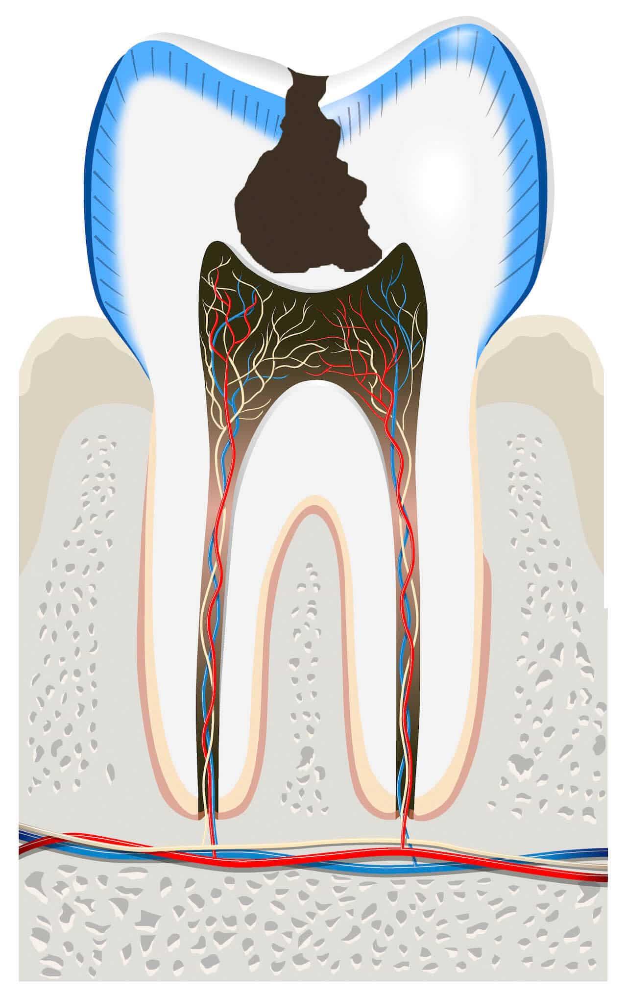 Carie Otturazione Dentale