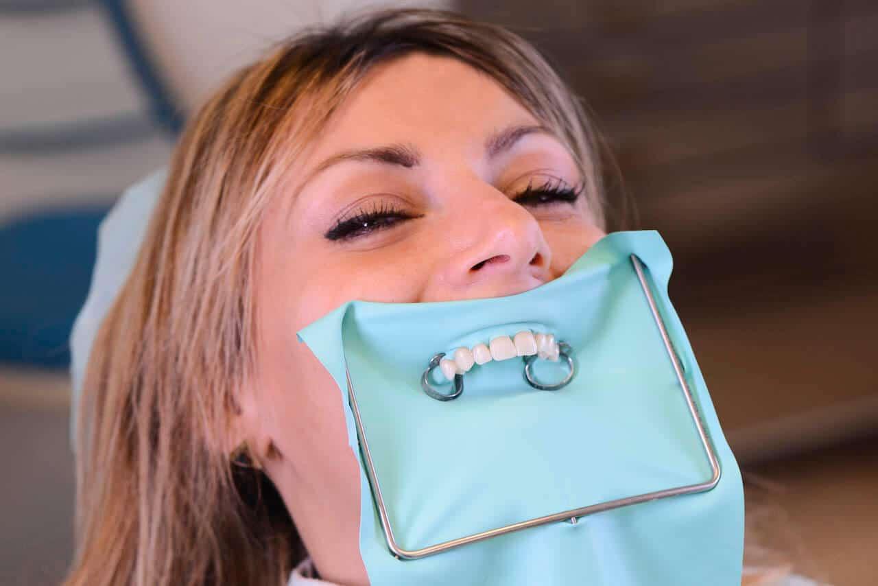 Diga di Gomma in Odontoiatria