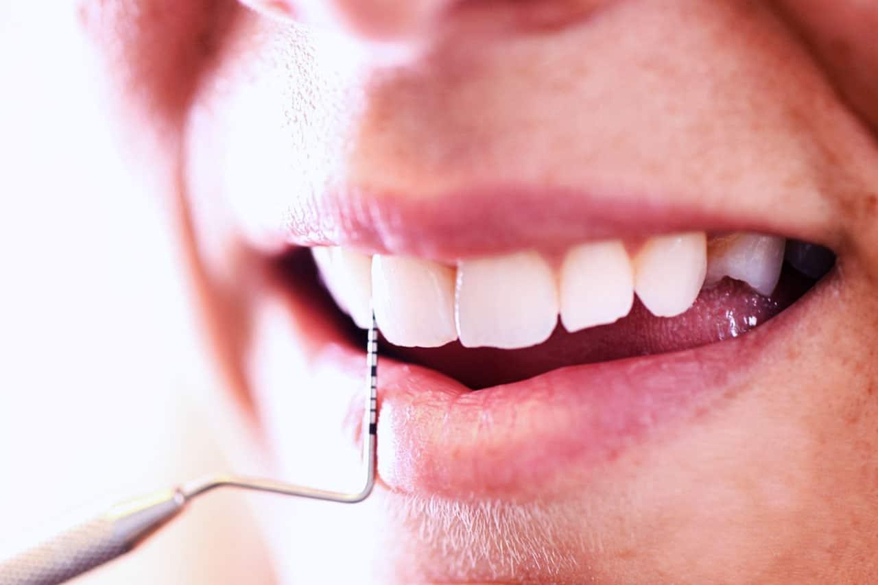 parodontite giovanile