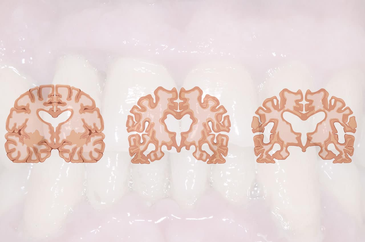 Parodontite-Alzheimer