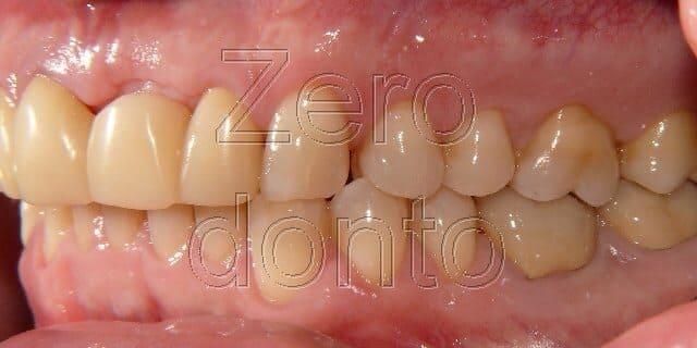 blog denti