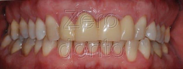 problemi denti affollati