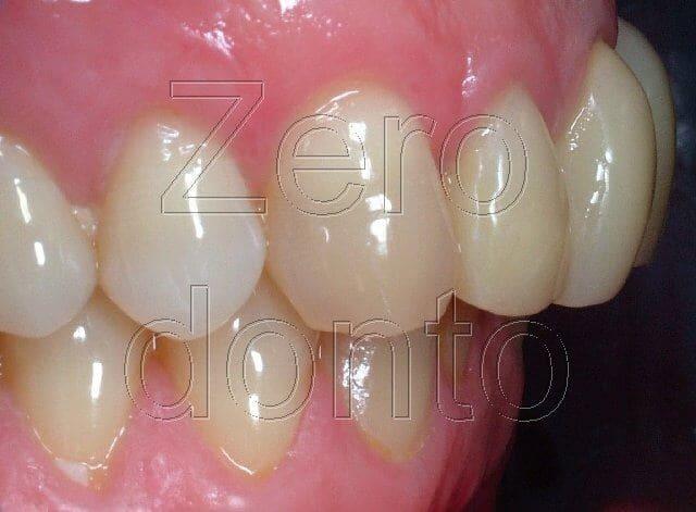 immagine denti