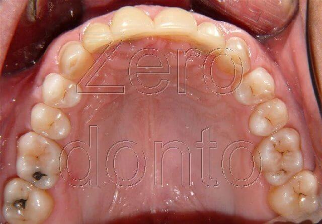 immagine blog dentista