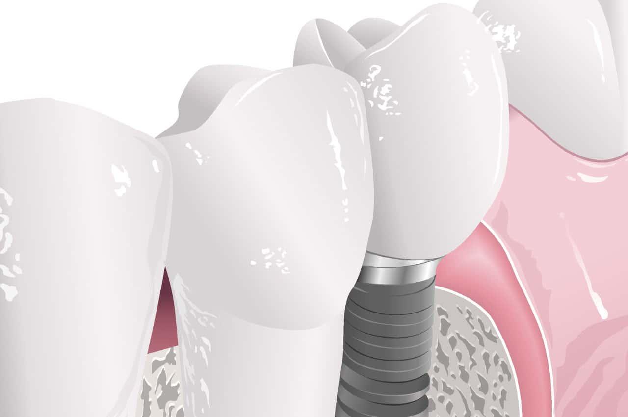 impianti-dentali-denti-naturali