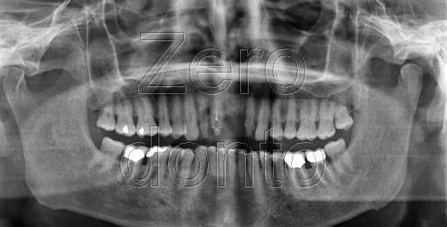 immagine foto denti