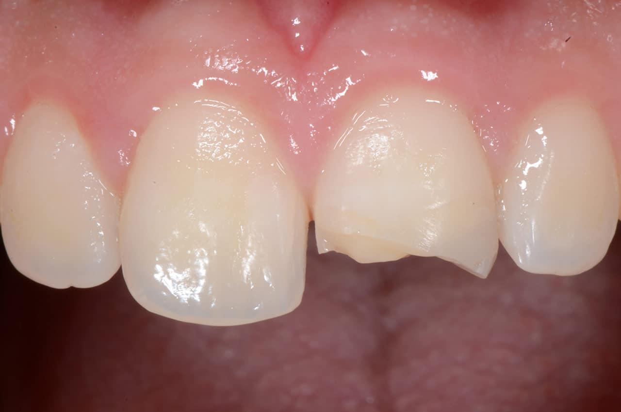 ricostruzione-dente-scheggiato