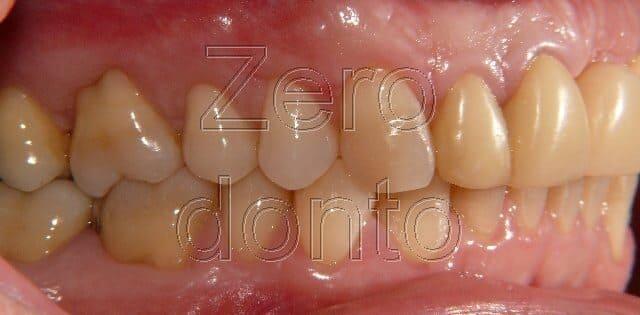 problemi ai denti