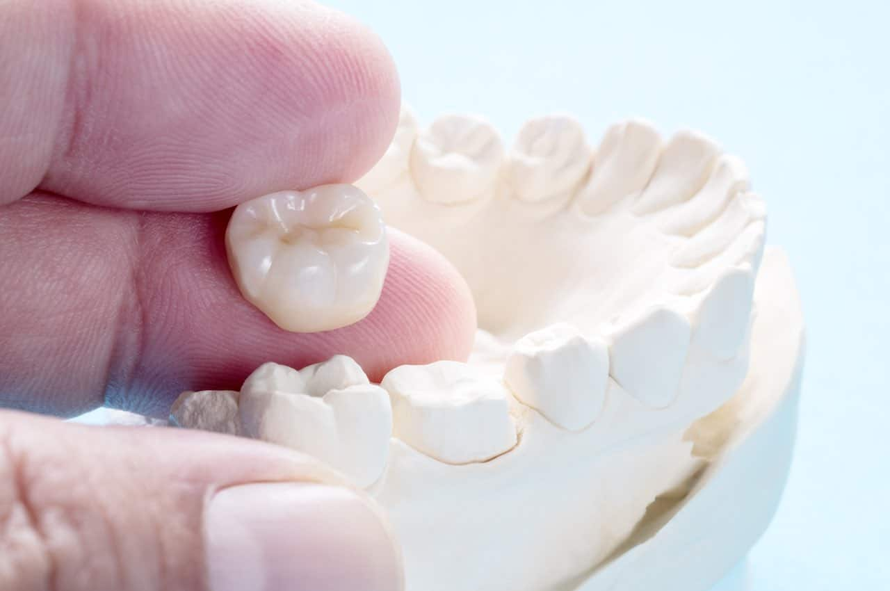 sostituire-capsula-dentale