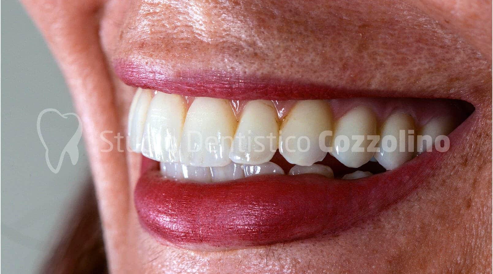 sorriso-finale-implantologia-guidata