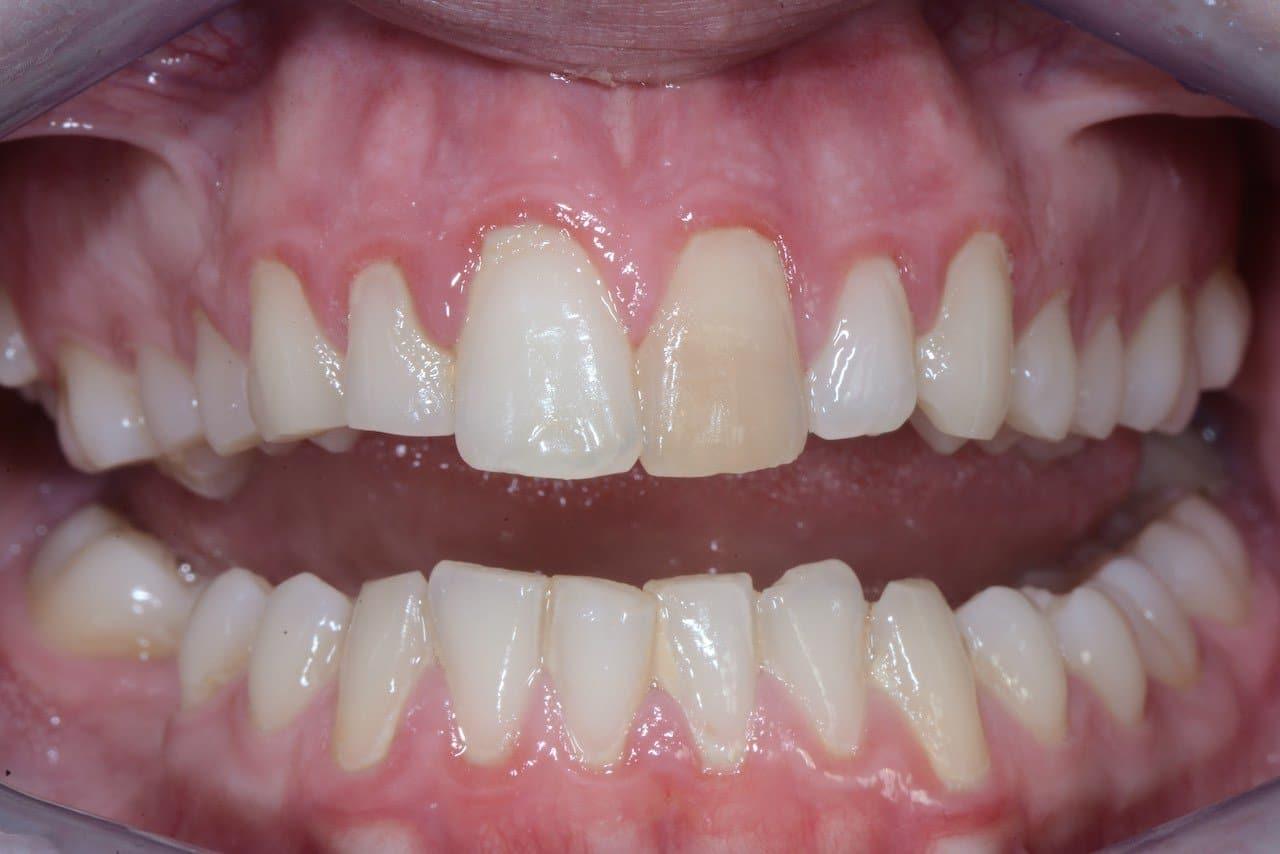 covid e parodontite