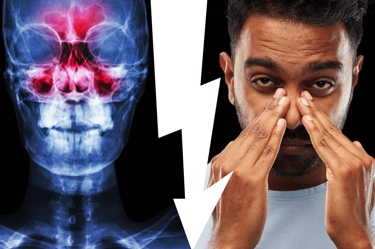 Mal di denti e sinusite
