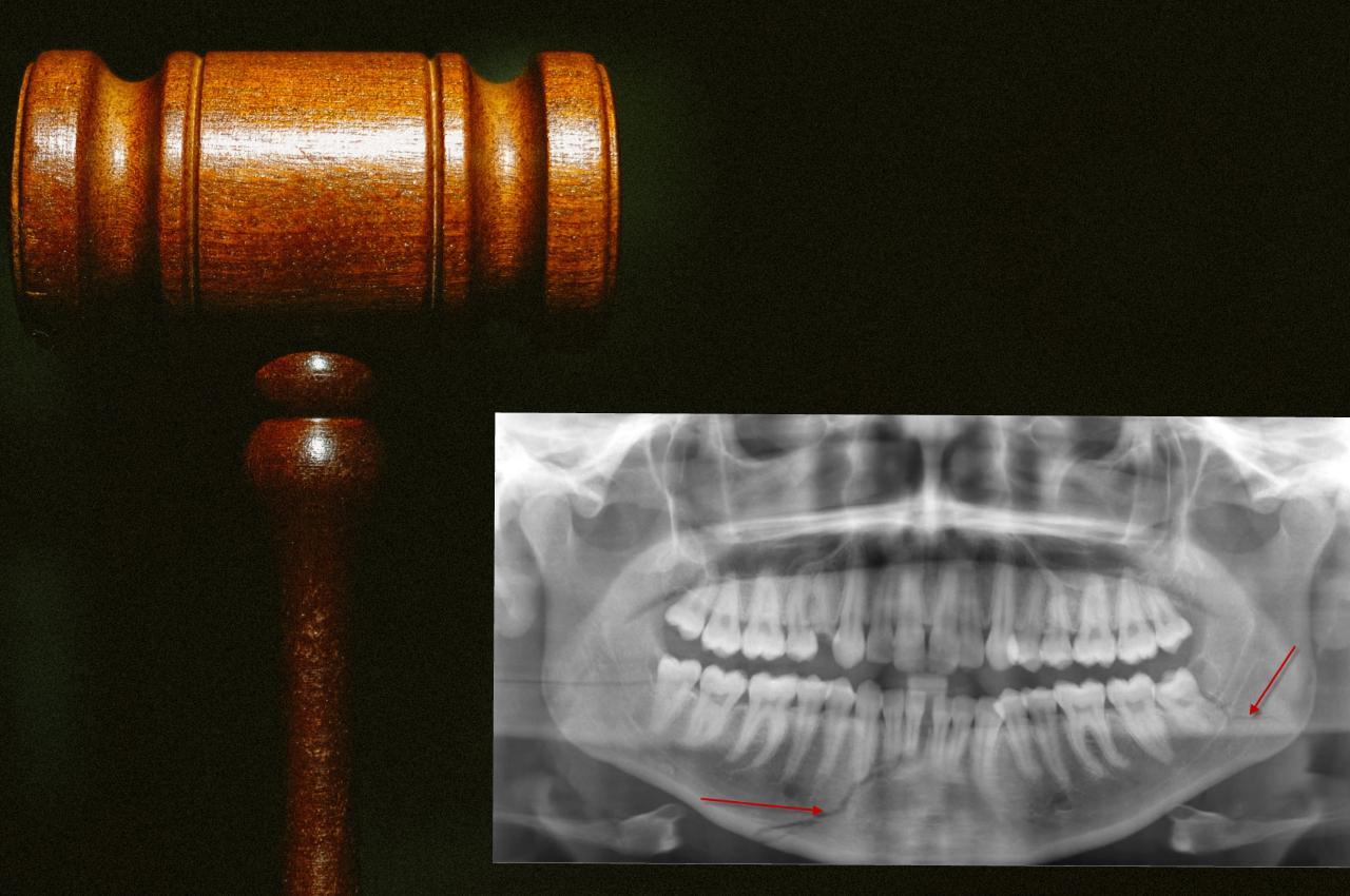 odontologo forense