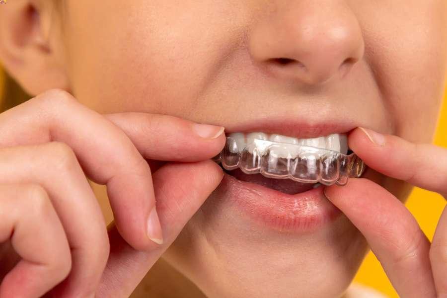 come evitare di digrignare i denti la notte