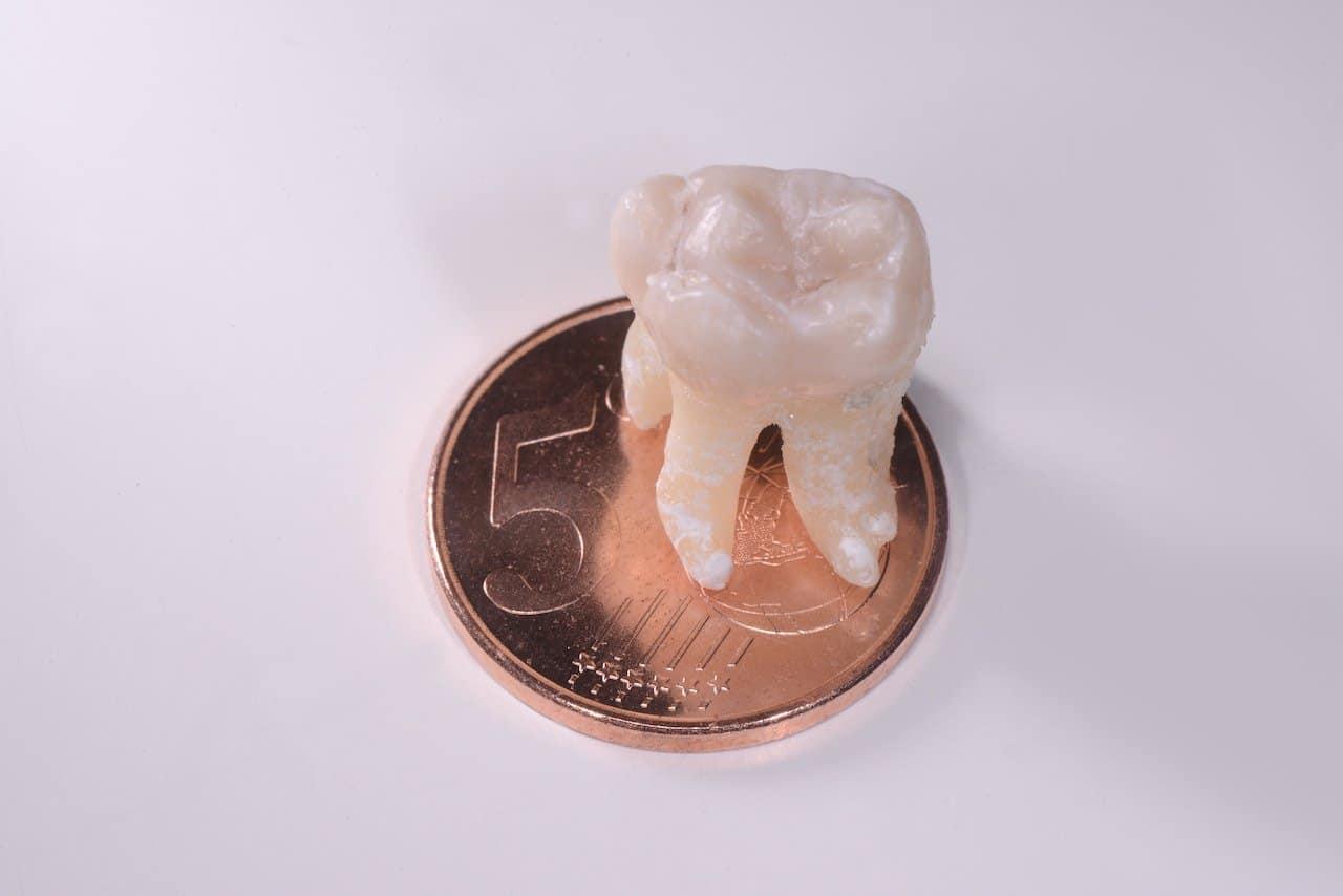 quanto-costa-estrazione-dente