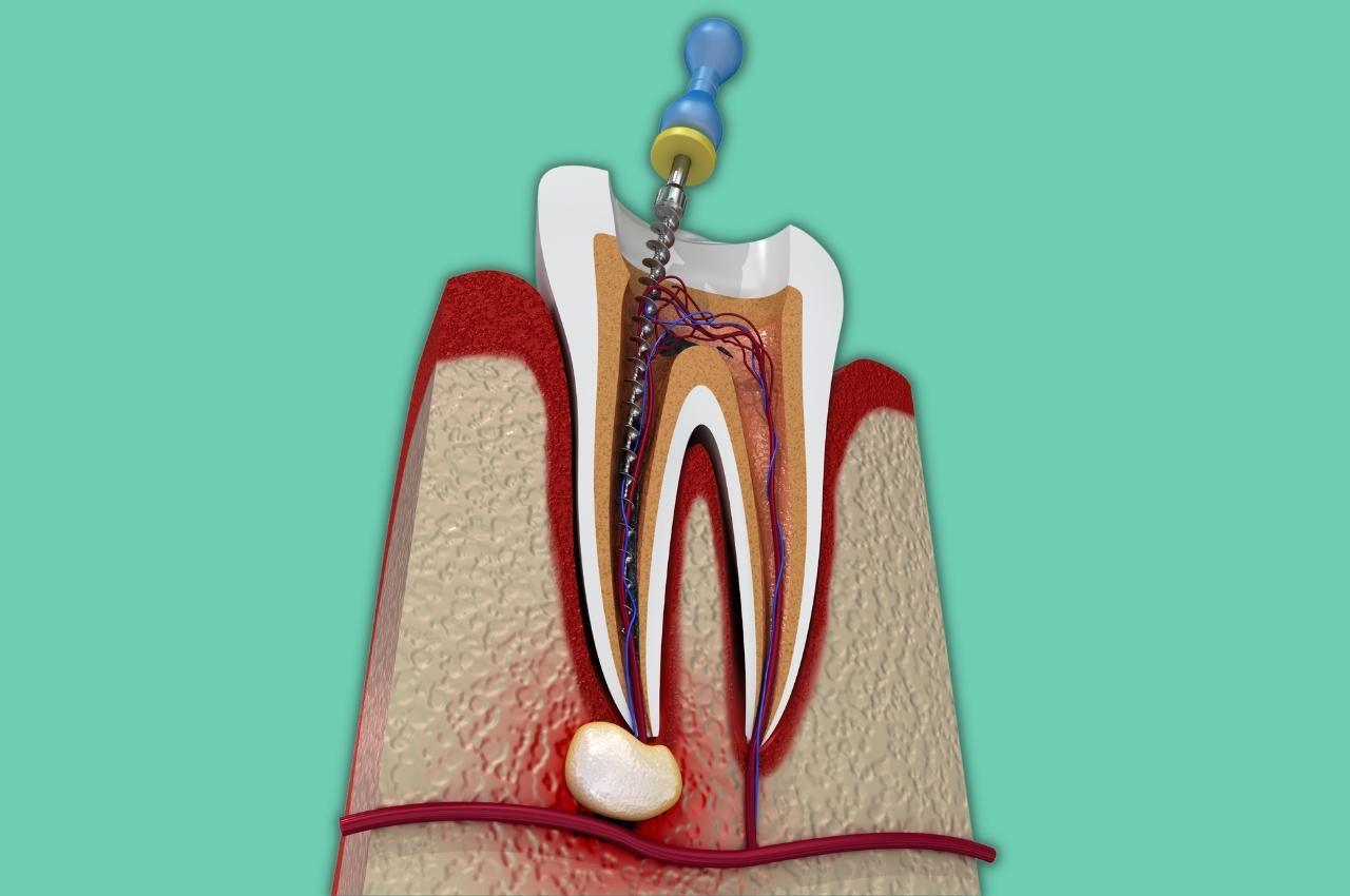 Granuloma dentale, cos'è, come trattarlo